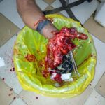 Man's Hand Blown Off While Throwing 'Knockout' During Festivity. Graphic Photos
