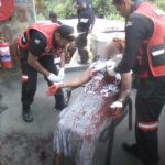 Woman Survives After Being Stabbed Over 7 Times By Armed Robber (Photos)