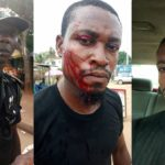 Man Injured After Policeman Went Bersek Over N100 Bribe In Imo State (Photos)