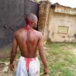 Man Attacked By 10 Armed Cultists In Akwa Ibom, Narrates What Happened. (Photos)