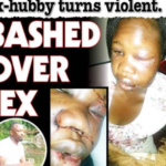 Woman Beaten To Pulp After Refusing Ex- Husband Sex During Visit. (Photos)