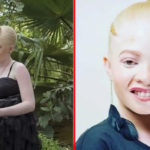 Beautiful Albino Lady Ayanda Sibanda Gets Crowned As Miss Albinism Zimbabwe( Photos)