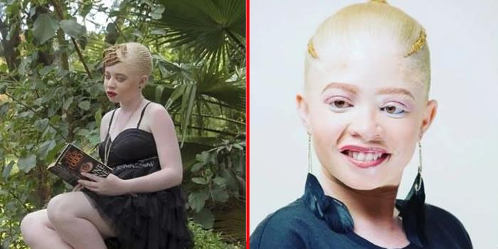 Miss Albino