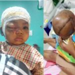 13-Month-Old Baby Attacked By Pitbull Dog In Abuja Survives (Photos)