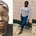 My uncle's wife took away my looks but didn't stop me from being me – Nigerian lady writes (photos)
