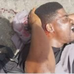Photos Of PUNCH Journalist Who Was Brutalized By Policemen At Lagos' October 1 Protest
