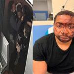 'They shame us': French President condemns images of violent arrest of black man