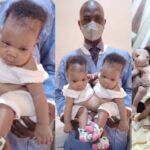 Photos Of Conjoined Twins Who Were Separated At The University Of Ilorin Teaching Hospital