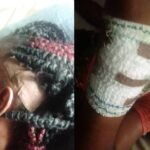 Female Rice Farmer Allegedly Attacked By Herdsmen In Ondo